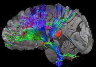 Нейроны и нейросети. Обзор основных структур головного и спинного мозга.