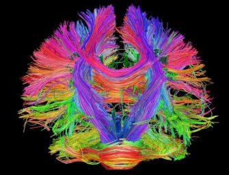Нейропрорывы-2017: неврология и нейронауки