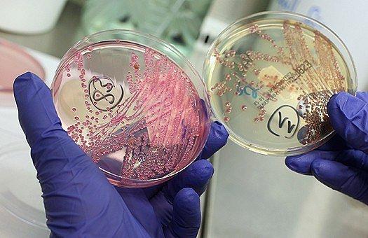 В тени чумы и холеры: малоизвестные, но не менее опасные инфекции (в рамках выставки «СУПЕРМИКРОБЫ. Борьба за жизнь»)
